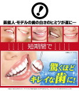 Doctor of dental science development! Astound even the dentist! At home whitening care professional. sponge teeth whitening oral care dental care teeth whitening su-po-n ji