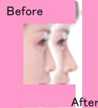 【美鼻】【美鼻補整器】【送料無料】【代引手数料無料】HICO(ハイコ)美鼻補整器具3