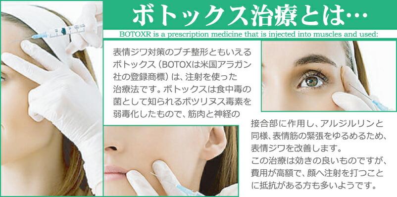 ボトックス治療とは、表情ジワのプチ整形と言えるボトックスはアルジルリンと同様、表情筋の緊張を緩め、表情ジワの改善します。