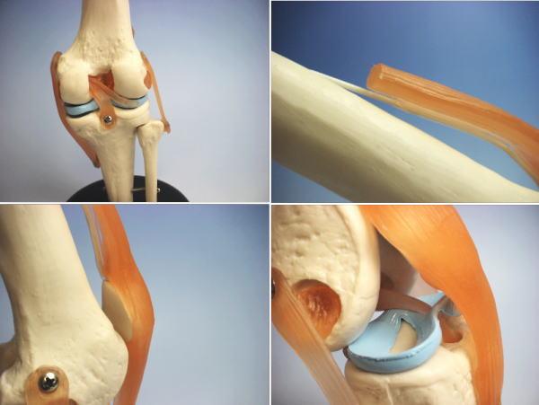 膝关节骨骼模型人体模型