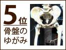 【健康・美容・ダイエットのアイデア雑貨】骨盤のゆがみ
