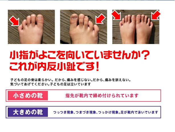 神戸外反母趾手技矯正整体 神戸外反母趾センター …