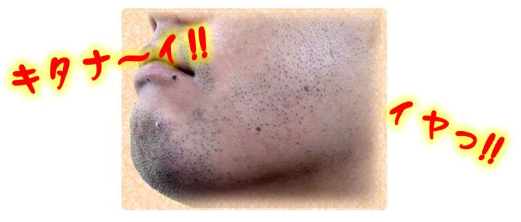 濃いヒゲムダ毛にはエヌナノアフターシェイブジェル/ヒゲ剃り後が青い。濃いヒゲは嫌い。