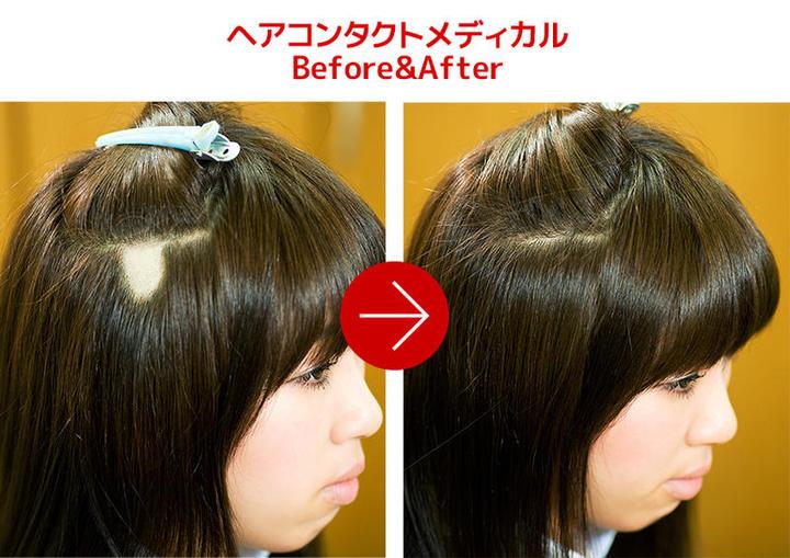 こんなに隠せるヘアコンタクトメディカル