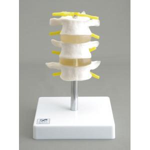 アシスト 腰椎模型3交連(実物大) 14408 P12Sep14