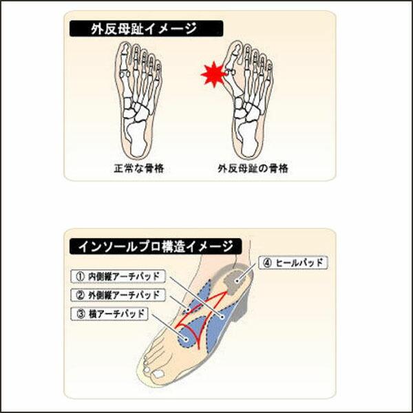 プロ】外反母趾対策靴が足 ...
