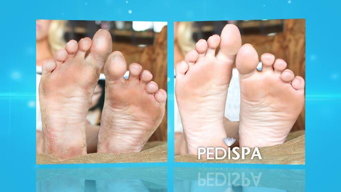 ペディスパプロ (PEDISPA professional)