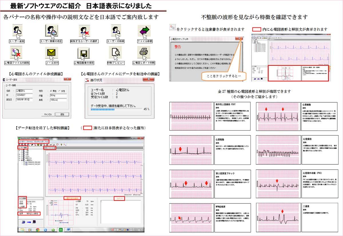 パソコンで管理できる心電図波形