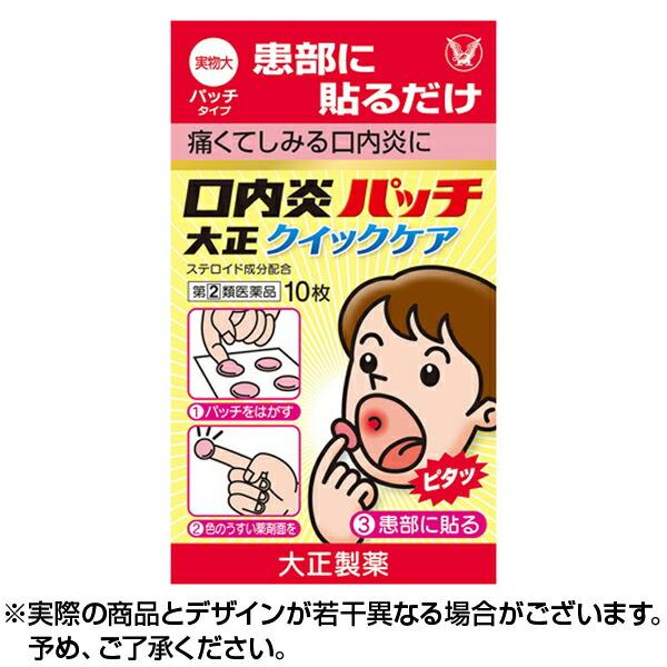 妊娠初期口内炎