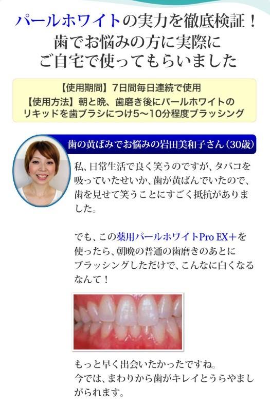 パール ホワイト 薬用 薬用パールホワイトプロEXプラスの口コミ/歯は白くなる?本音レビュー