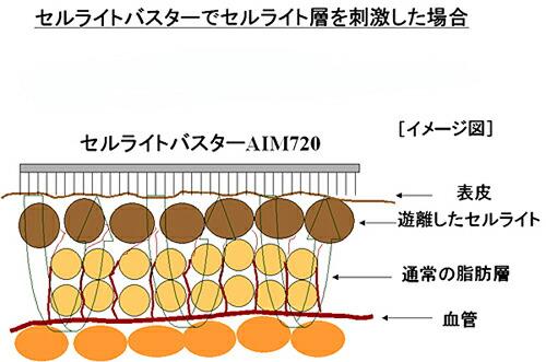 セルライトバスターマッサージ図