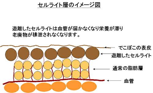 セルライトのイメージ図