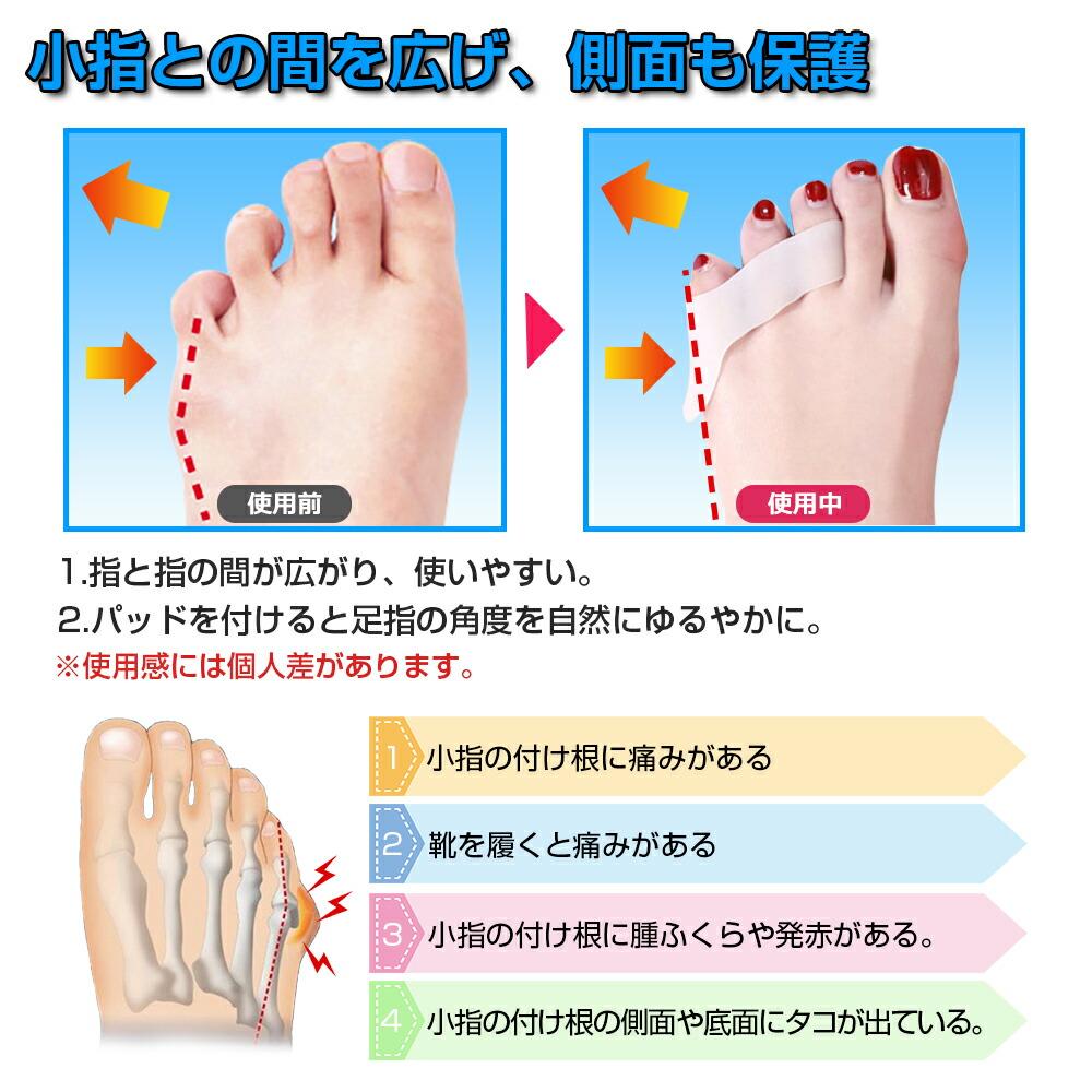 付け根 の 足 小指 痛い の