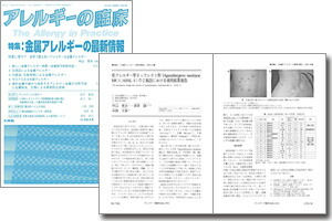当社が開発しております金属アレルギー防止を目的としたセラミックコーティングの論文が、「アレルギーの臨床」の「特集:金属アレルギーの最新情報」に掲載されました。