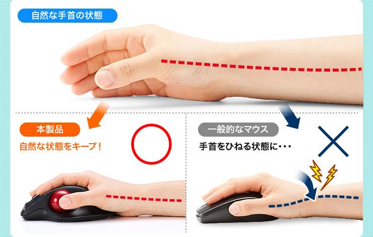 自然な手首の状態