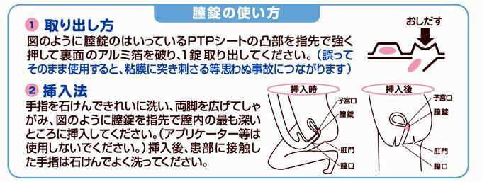 フラジール 膣 錠 処方薬「フラジール膣錠」のご説明 ...