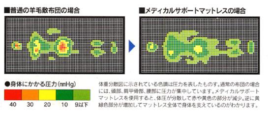 メディカルサポートマットレスDX 体重分散図