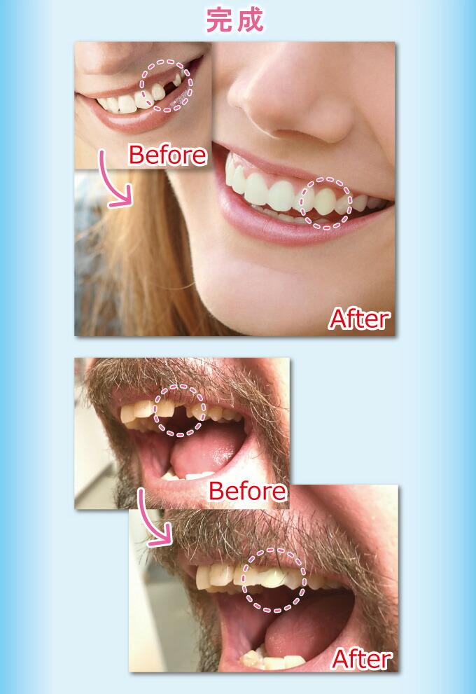 インスタントスマイル 抜け歯用 疑似入れ歯 義歯 仮歯 審美歯