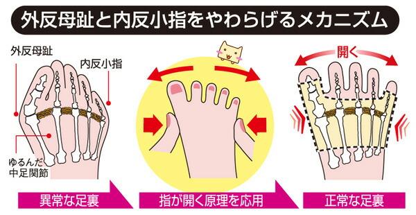 外反母趾と内反小指をやわらげるメカニズム