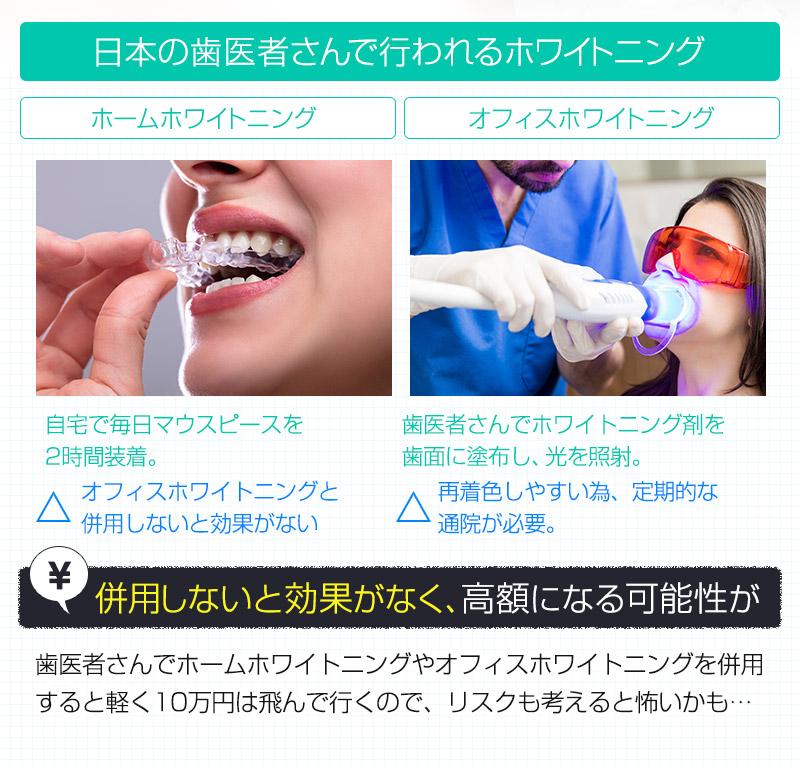 日本の歯医者さんで行われるホワイトニング