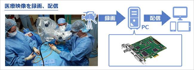 医療用HDカメラの映像を録画、配信