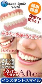 インスタントスマイル 簡単 付け歯