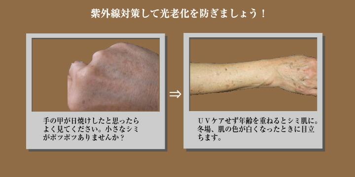 手や腕のシミ