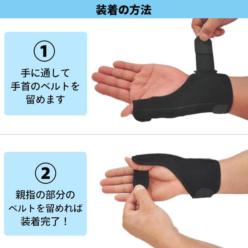 親指 関節 痛み