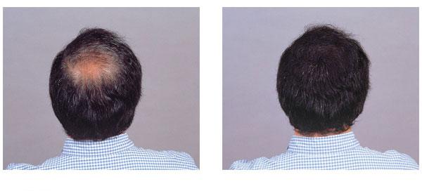herusi-99box | Rakuten Global Market: Instantly hide thinning hair ...