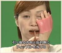唇と歯の間に片側ずつ装着
