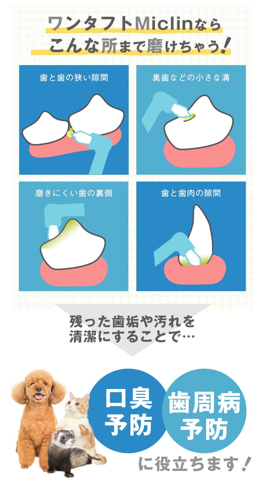 密な植毛で歯肉の隙間にフィット