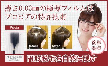 円形脱毛症用ヘアコンタクトメディカル