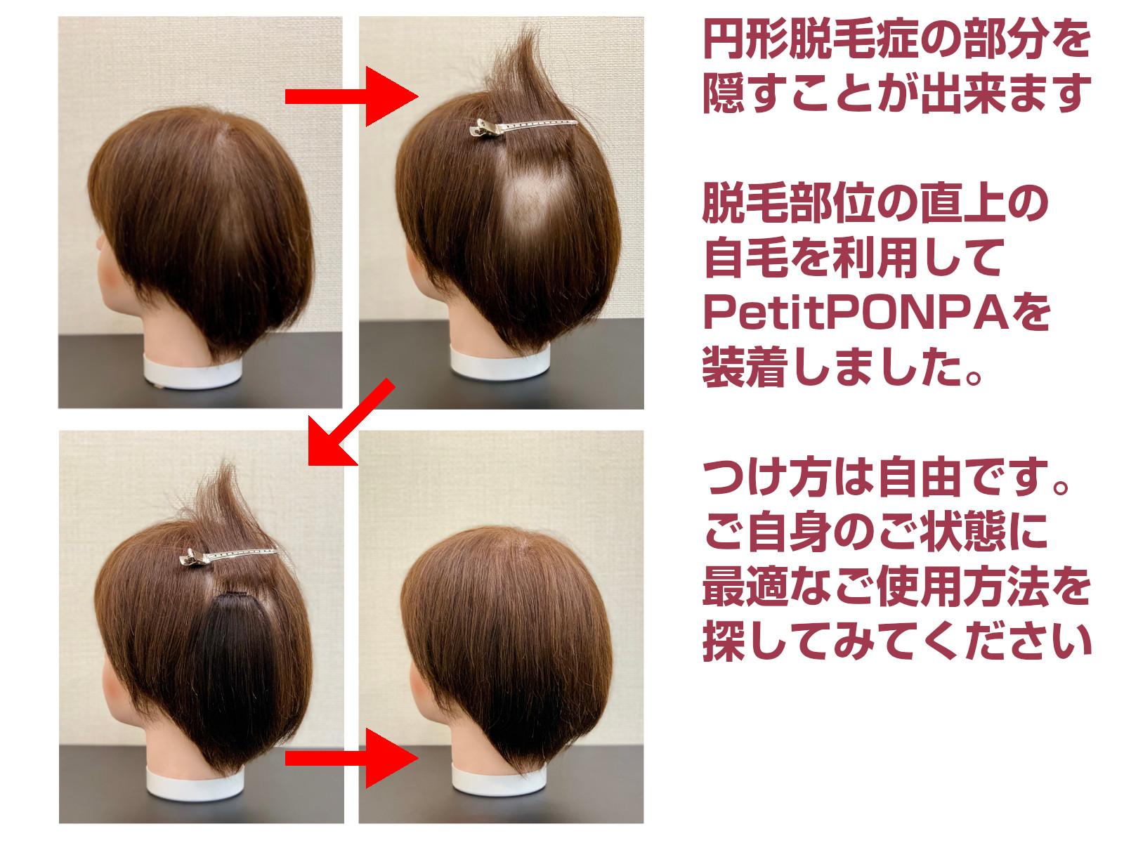 「PetitPON-PA(プチポンパ)」で円形脱毛をカバーしてみました