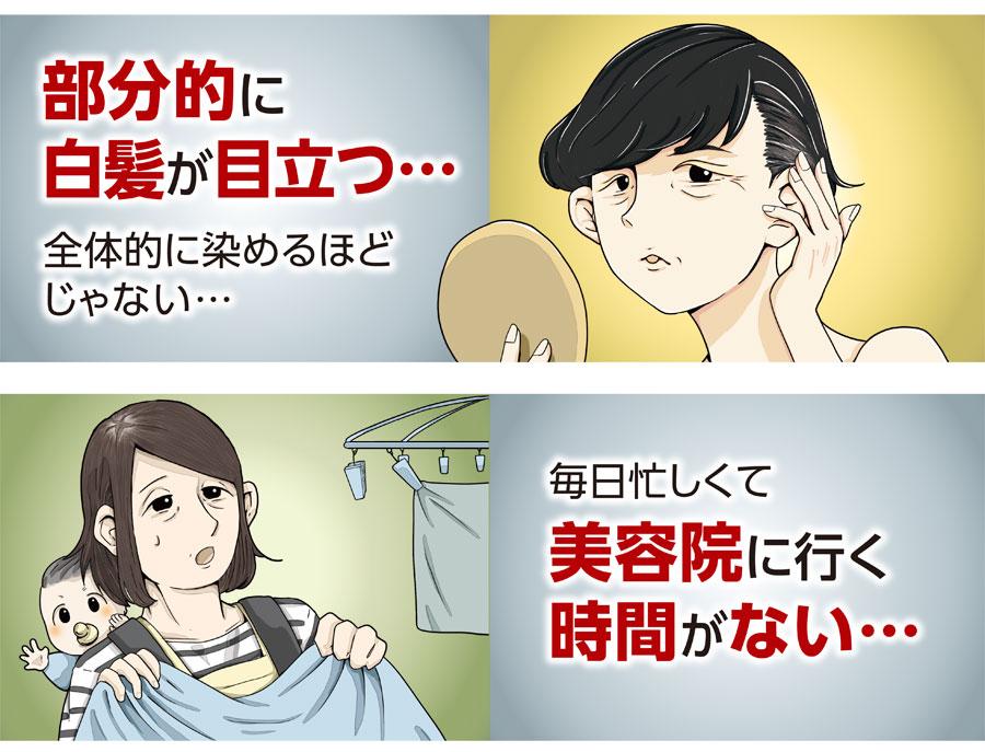 白髪 トラネキサム酸 副作用