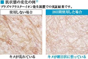 写真:肌  状態の変化の例[※]プラズマクラスターイオン発生装置での実証結果です。プラズマクラスター使用しない場合、肌のキメが乱れている  。プラズマクラスターを28日間使用した場合、キメが網目状に整っている。