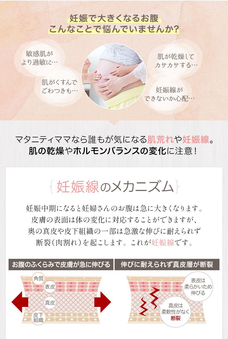 妊娠線のメカニズム