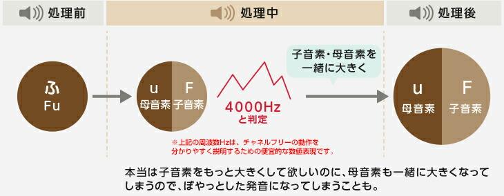 アクトス補聴器通常の補聴器