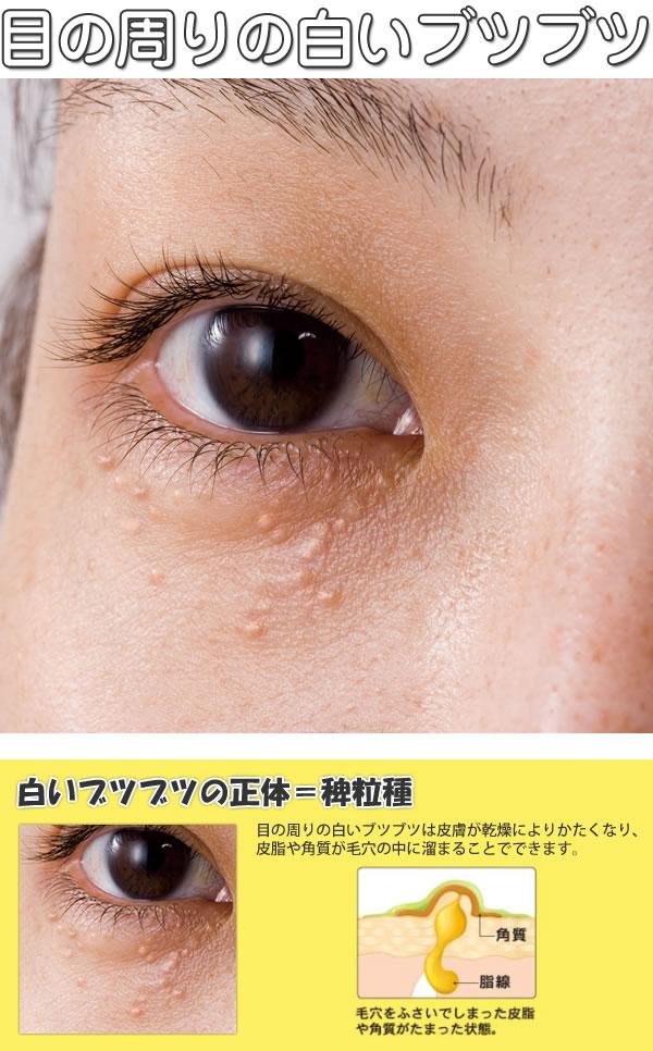 白い 周り ぶつぶつ の 目