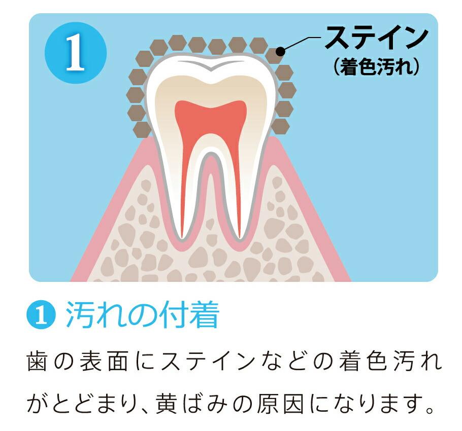 (1)汚れの付着/歯の表面にステインなどの着色汚れがとどまり、黄ばみの原因になります。