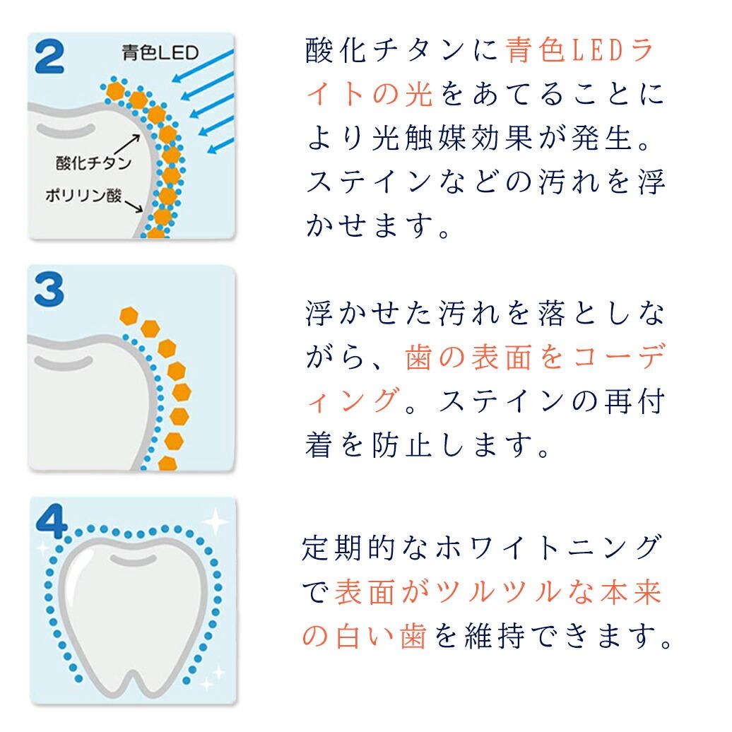 歯が汚れる原因ってご存じですか?