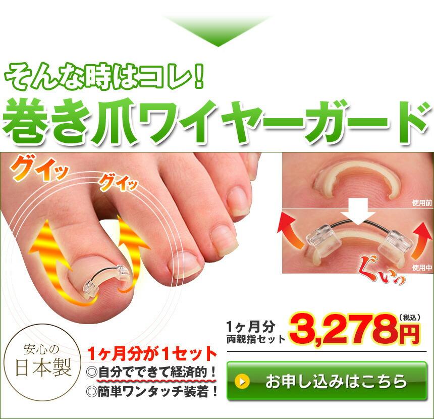 巻き爪ワイヤーガード 1箱 1ヶ月分
